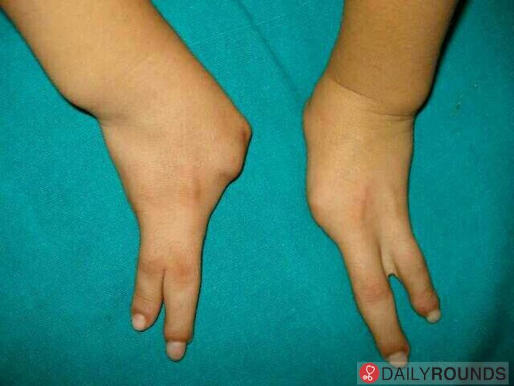 Ectrodactyly.. Karsch-Neugebauer Syndrome.. Lobster Claw ...