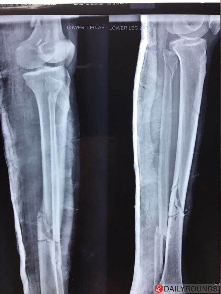 Comminuted Fracture Of Middle 13 Rd Tibia Fracture Of Neck And