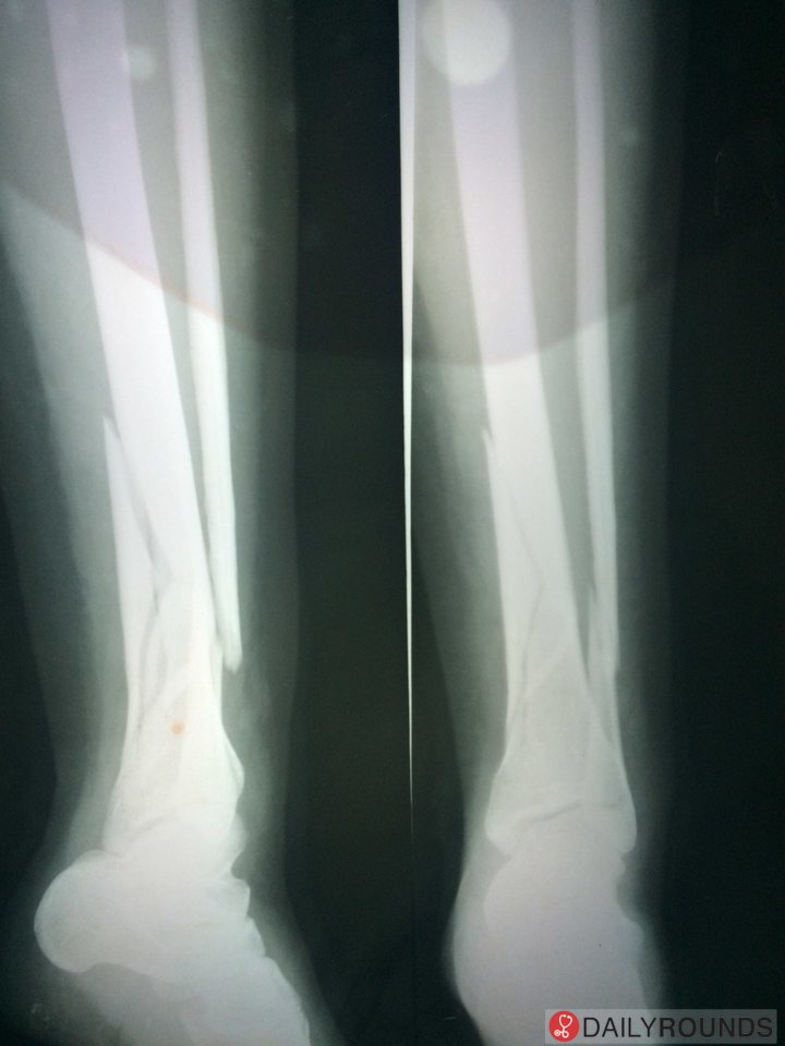 Comminuted Fracture Tibia With Anterior Angulation And Oblique