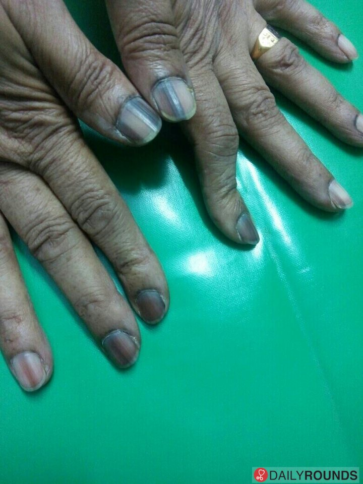 longitudinal melanonychia..?? Melanonychia is brown or black ...