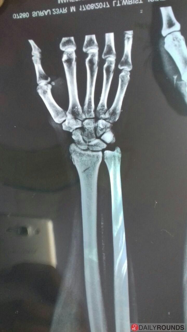 Volar barton fracture distal radius CT will define exact anatomy of ...